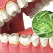 dry mouth causes remedies