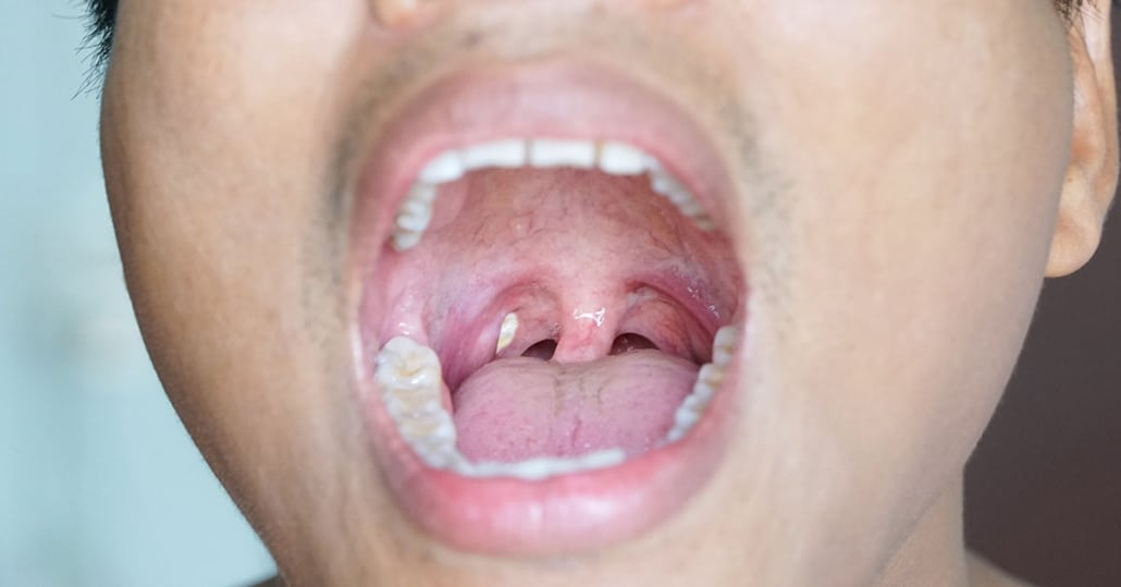 Do Tonsil Stones Cause Bad Breath? | SmartMouth